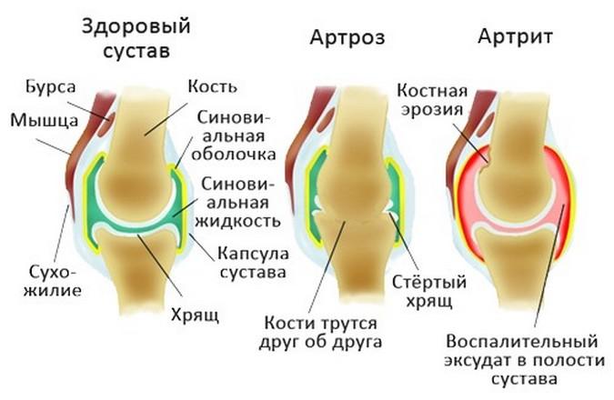 Что такое артроз и чем он отличается от артрита?
