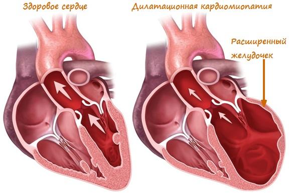 Что такое дилатационная кардиомиопатия?