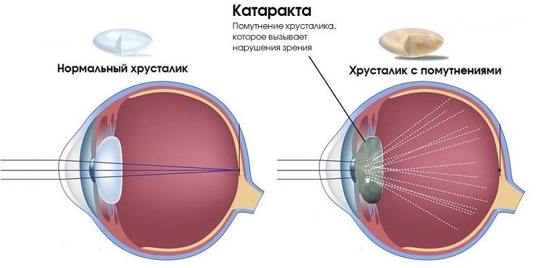Что такое катаракта у собак?