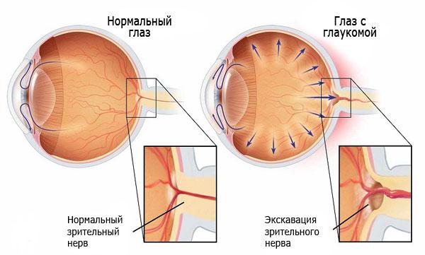 Что такое глаукома у собаки?