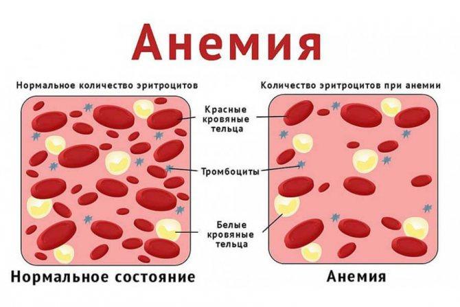 Что такое анемия у собак?
