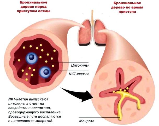 Что такое астма у собак?